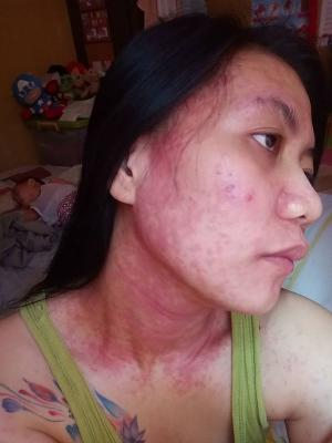 Reguyal shows the rash from using mercury-tainted products last year. Source: Grace Reguyal/Facebook